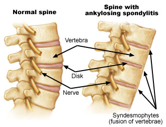 Diagram illustrating the effects of Ankylosing spondylitis.