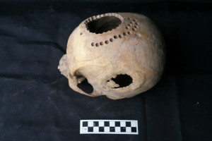 New bone growth at the trepanation site on the side of the head indicates a successful procedure. However, the holes drilled at the top of the skull were as the individual was dying or shortly after he died. Credit: Danielle Kurin